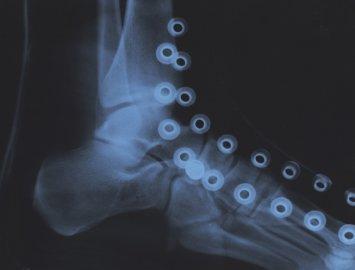 rayon-x de tracés de laçage sur mon pied - x-ray of lacing patterns on my foot
